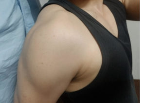 【低身長】低身長ならこの筋肉を鍛えればいい※僕の画像有り【筋トレ】